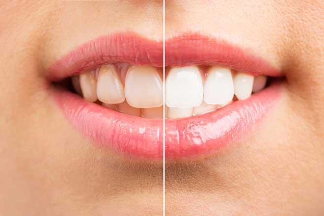 نحوه سفید کردن دندان