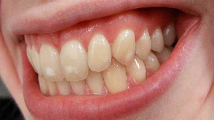 سفیدی روی دندان