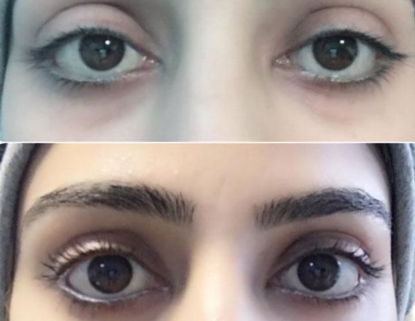 درشتی چشم بدون آرایش