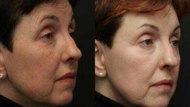 قبل و بعد از لیزر