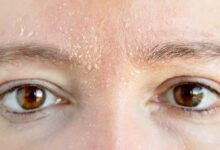 Photo of 5 درمان خانگی موثر خشکی پوست (مواد طبیعی در دسترس)