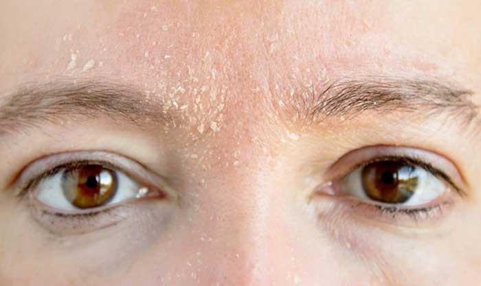پوست خشک