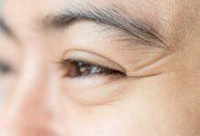 Photo of 5 روش خانگی برای رفع چین و چروک پوست صورت و گردن