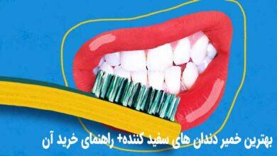 خمیر دندان سفید کننده