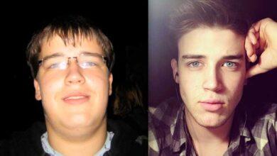 قبل و بعد از لاغر کردن صورت