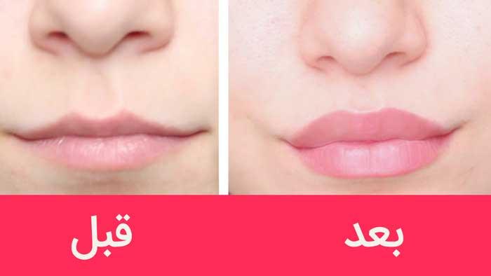 حجم دهی لب قبل و بعد
